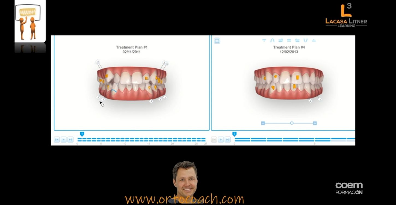 Vídeo completo del Curso 'La Ortodoncia del Siglo XXI - Parte II'